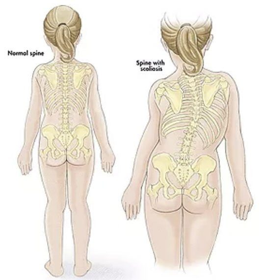Difference of normal spine vs spine with scoliosis