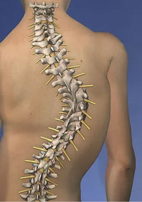 Scoliosis Diagram