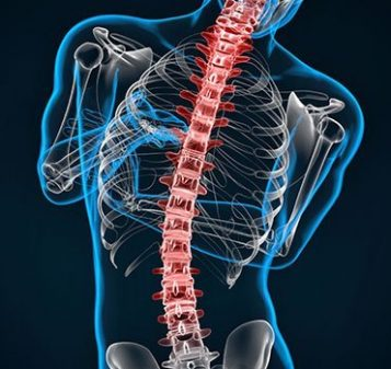 http://Scoliosis