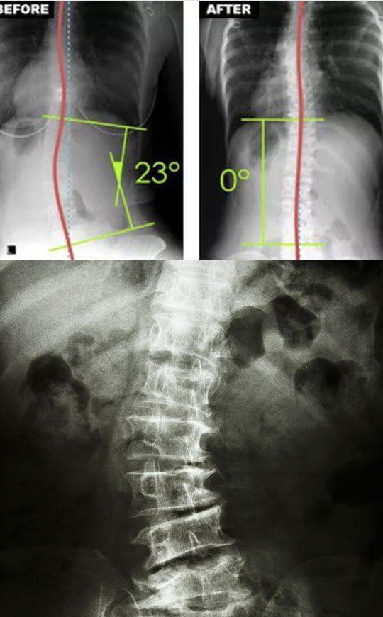 Scoliosis Intensive Care