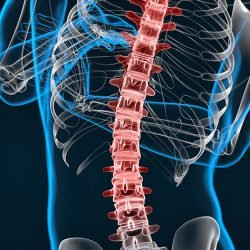 Spine image for scoliosis treatment in Singapore